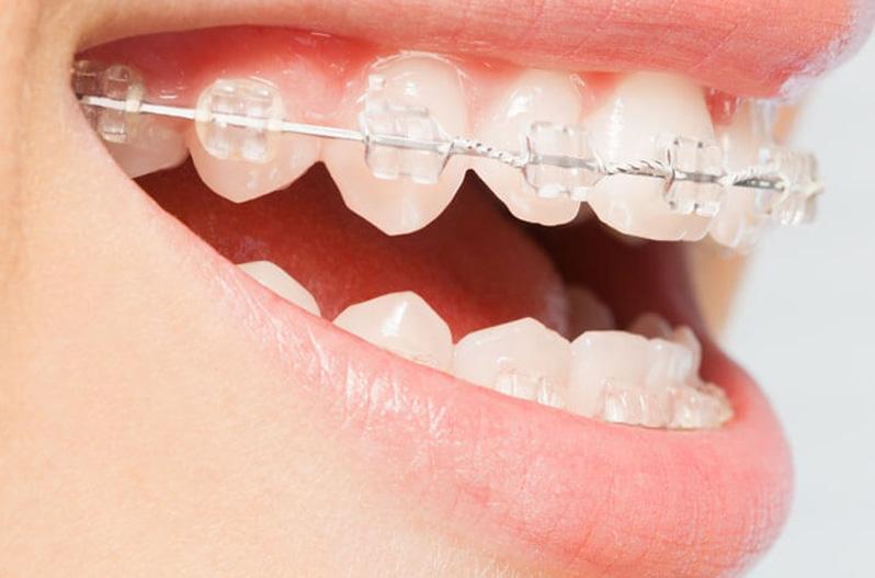 Cosmetic white braces